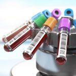 Địa chỉ xét nghiệm viêm gan (A, B, C...) tốt nhất 2020