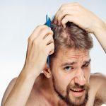 Hói đầu có chữa được không khi chủ yếu do di truyền?