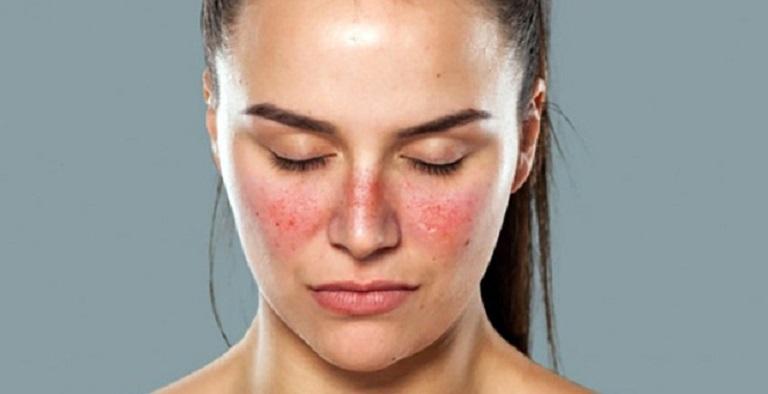 Người mắc một số bệnh tự miễn như lupus ban đỏ rất dễ gặp tình trạng rối loạn thần kinh thực vật