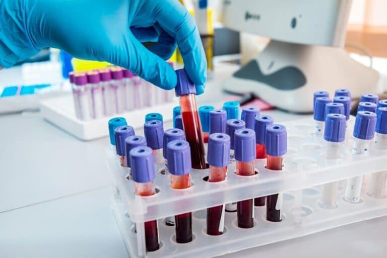 giá xét nghiệm viêm gan c
