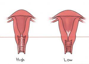 Cổ tử cung cao có ảnh hưởng gì? Thông tin cần biết