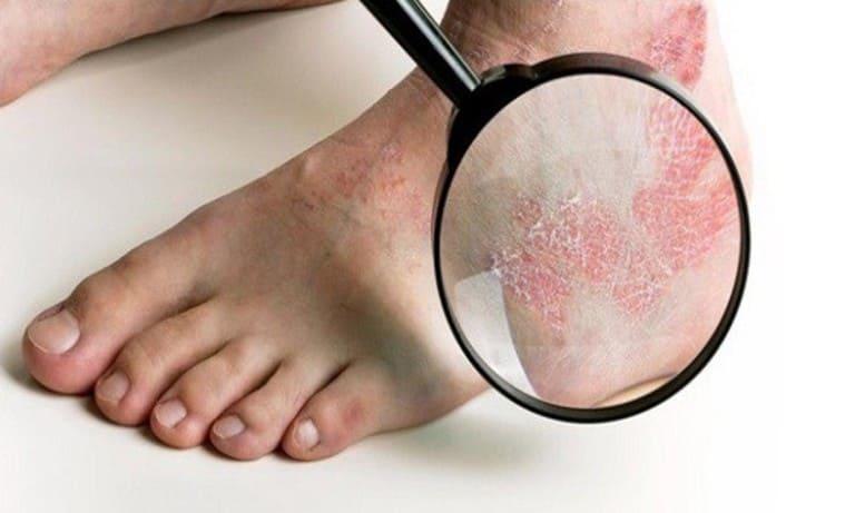 hình ảnh bệnh hắc lào ở chân