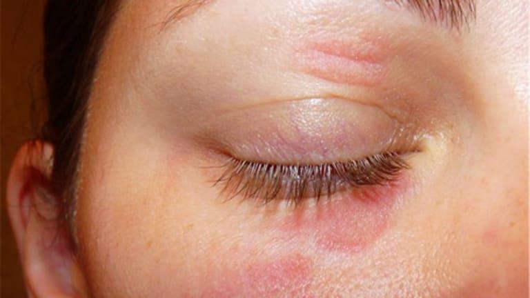 hình ảnh về bệnh hắc lào ở mắt