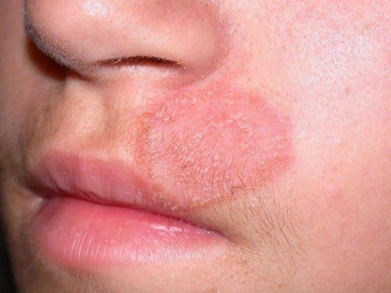 những hình ảnh về bệnh hắc lào trên mặt