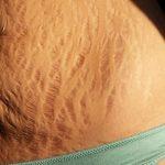 Hình ảnh rạn da khi mang thai và sau sinh - Nhìn & cảm nhận
