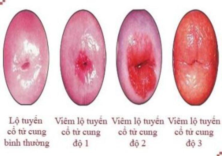 bị lộ tuyến cổ tử cung có cần trị không