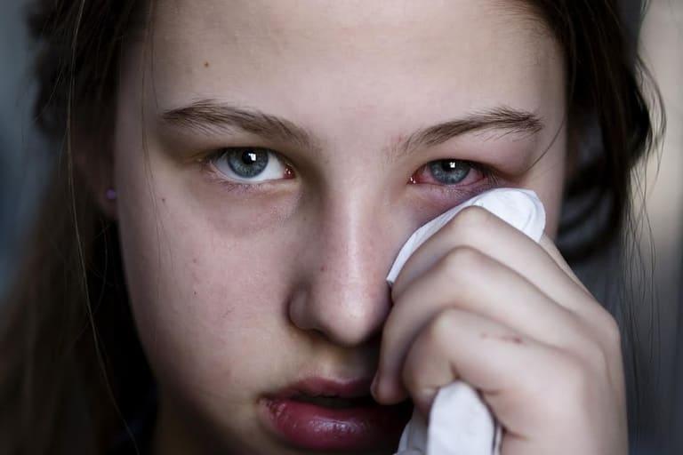 Bệnh viêm xoang gây biến chứng mắt