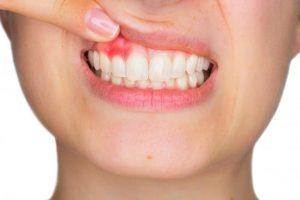 Các bệnh về răng miệng thường gặp và cách xử lý