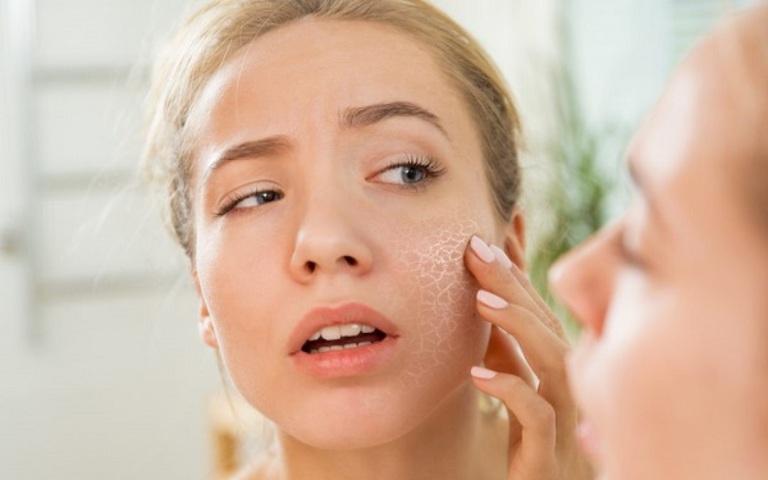 Cách làm sạch lỗ chân lông cho da sáng, ngừa viêm, mụn