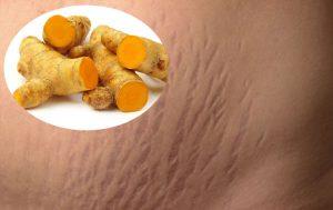 chữa rạn da sau sinh bằng nghệ