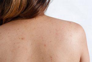 Vì sao mùa đông hay bị viêm lỗ chân lông? Cách trị