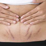 rạn da sau sinh có chữa được không