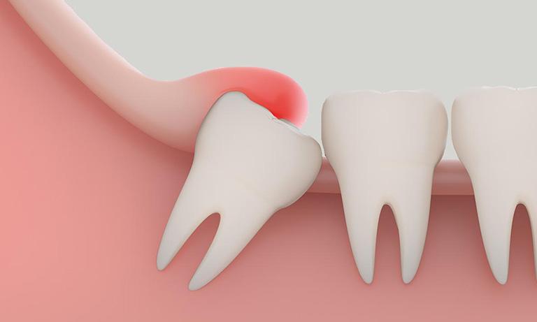 sưng nướu răng trong cùng