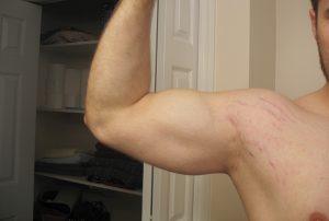 tập gym bị rạn da