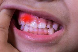 viêm nướu răng ở trẻ em
