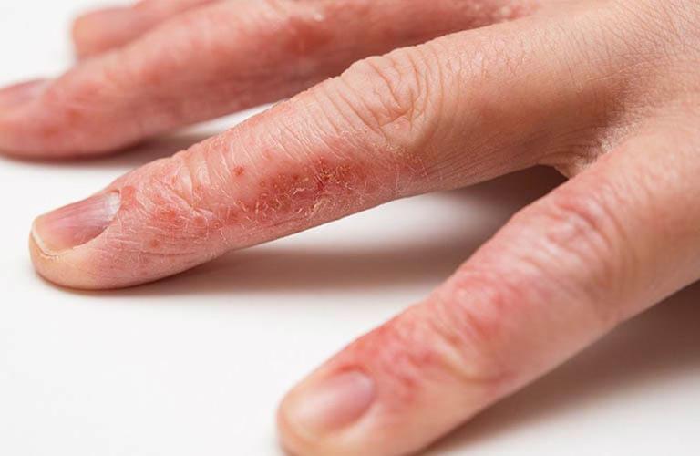 Cái ghẻ gây tổn thương cho da như thế nào?