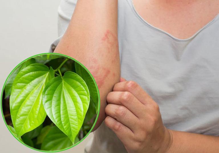 trị bệnh ghẻ bằng lá trầu không