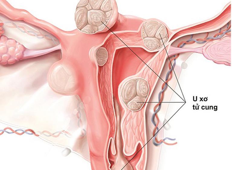u xơ tử cung phát triển nhanh
