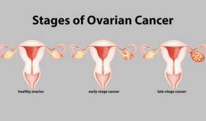 các giai đoạn ung thư buồng trứng