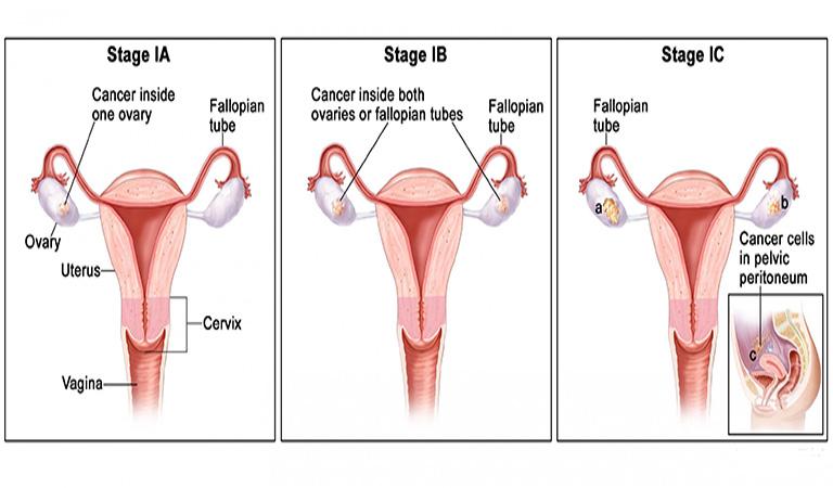 ung thư buồng trứng giai đoạn 1