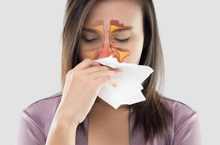 cây lược vàng chữa viêm xoang hiệu quả không