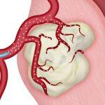 Ai có thể thực hiện nút mạch điều trị u xơ tử cung ?