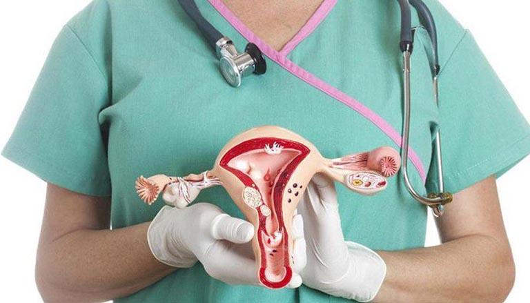 các phương pháp phẫu thuật ung thư buồng trứng