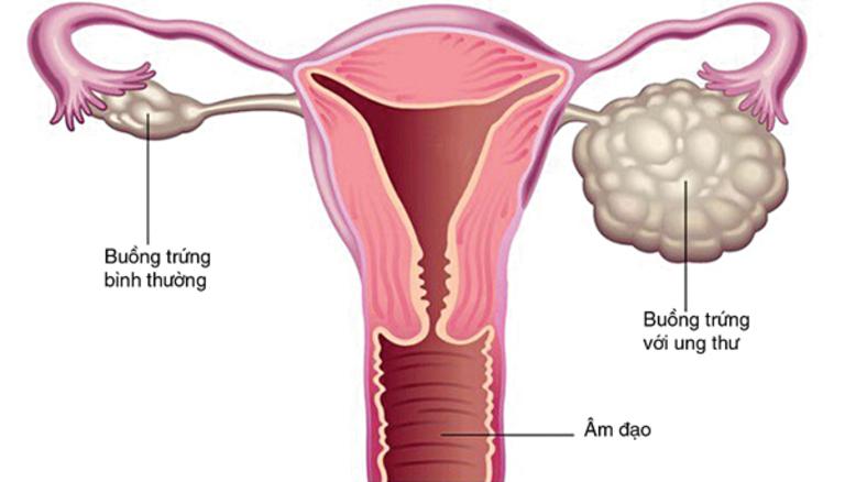 Bệnh ung thư buồng trứng ở trẻ em