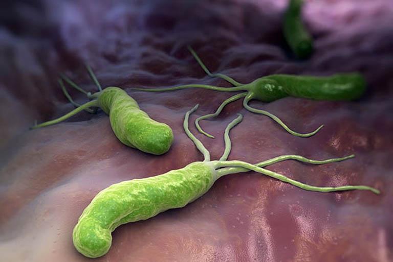 Điều trị viêm dạ dày trợt xung huyết mãn tính do vi khuẩn Hp