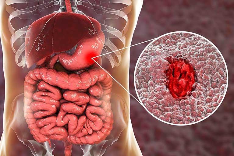 biến chứng của Viêm xung huyết niêm mạc hang vị mức độ vừa