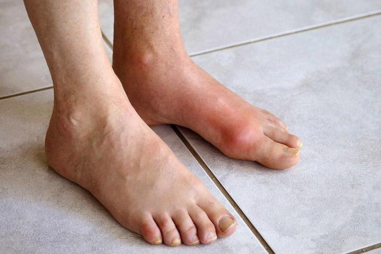 nổi cục ở mu bàn chân là bệnh gì
