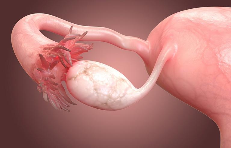 Các bệnh phụ khoa nguy hiểm ở nữ gây ung thư