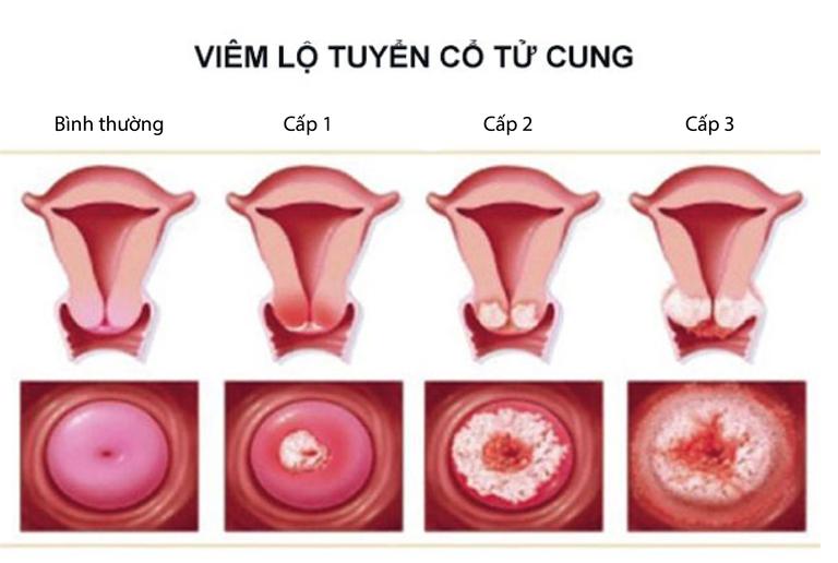 Các bệnh phụ khoa nguy hiểm ở nữ giới hiện nay