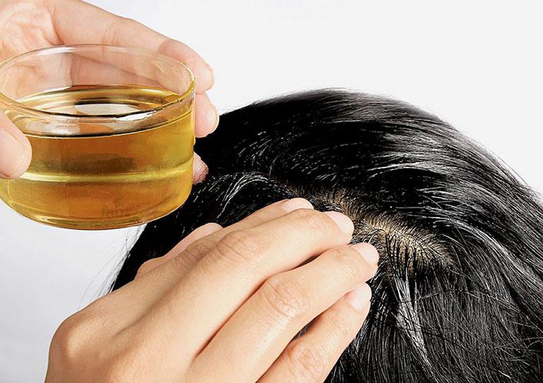 dùng bia chữa nấm da đầu