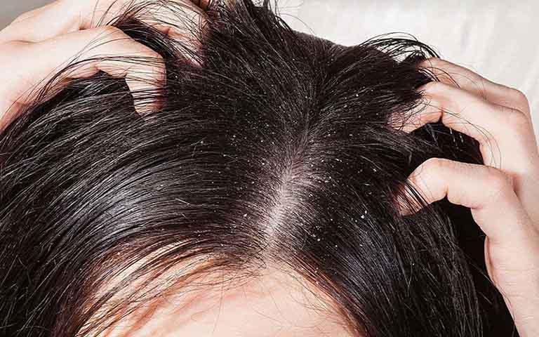cách trị nấm da đầu bằng lá trầu không có hiệu quả không