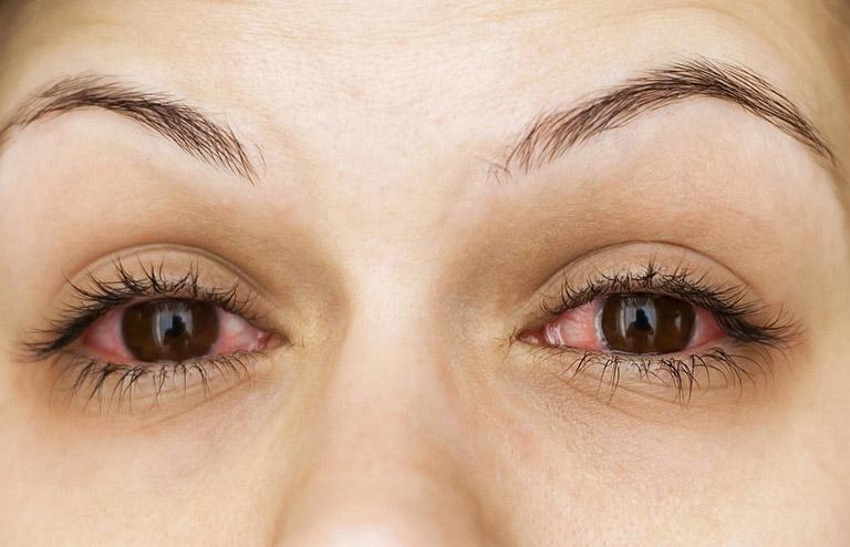 Chlamydia ở mắt nguy hiểm không