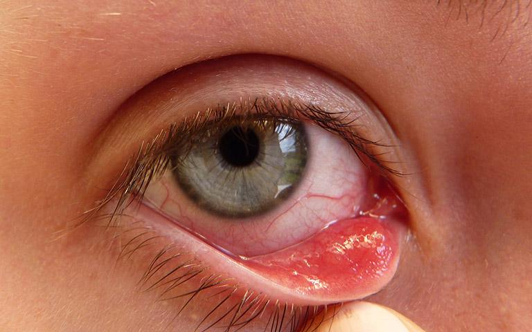 dấu hiệu nhận biết Chlamydia ở mắt