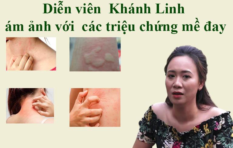 Diễn viên Khánh Linh luôn bị ám ảnh với triệu chứng bệnh mề đay