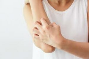 Đặc Ghẻ nước và tổ đỉa: Cách nhận biết, phân biệt, điều trịtrưng của tổ đỉa là các hạt mụn nước cứng và tạo thành vùng chai sần trên da
