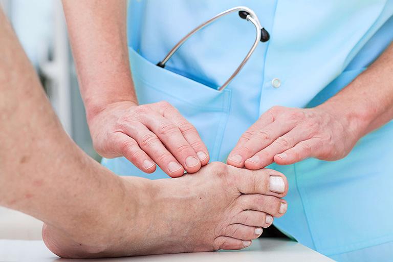vì sao ngón chân cái sưng đau