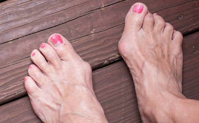 sưng đau ngón chân cái do đâu