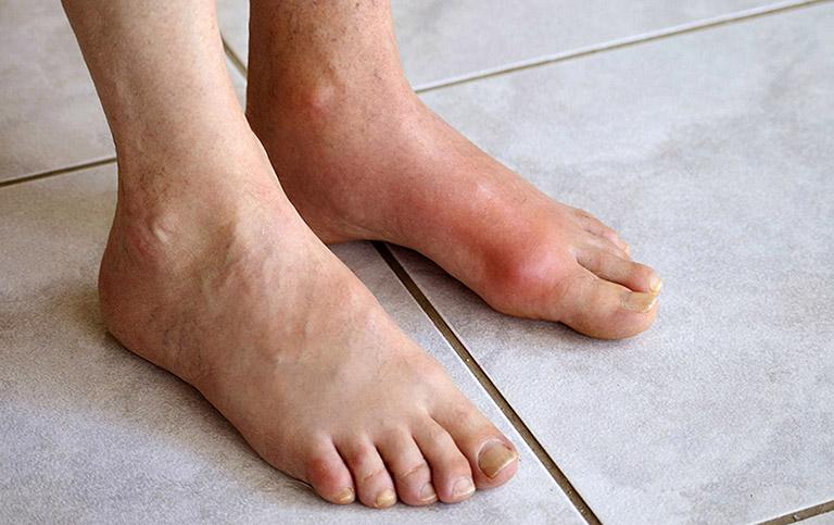 ngón chân cái bị sưng đau có phải bệnh gout không