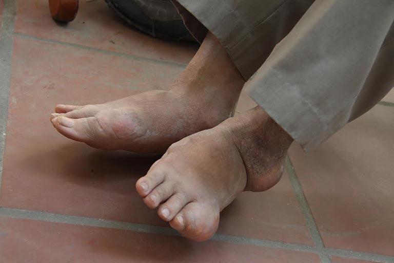 Ngón chân út bị sưng đau