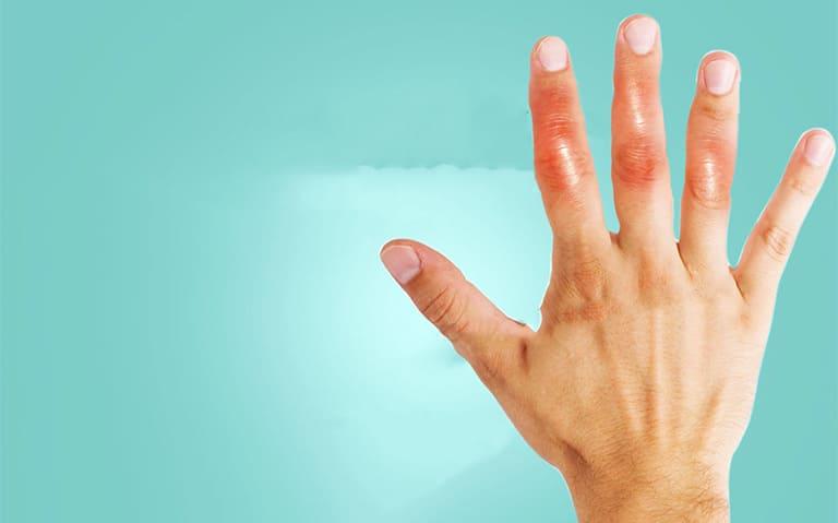 Nổi cục ở đốt ngón tay có phải gout hay bệnh gì?