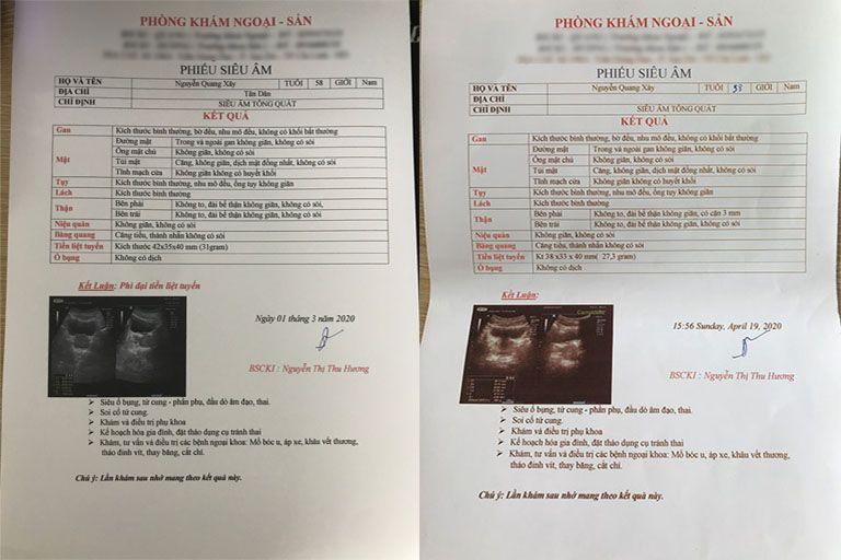 Kết quả siêu âm trước và sau 1 tháng điều trị của ông Xây