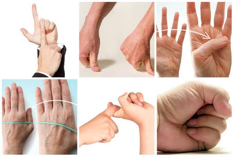 triệu chứng thoái hóa khớp bàn tay