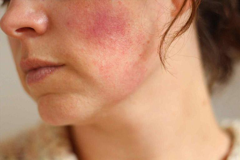 viêm da tiếp xúc dị ứng ở mặt có nguy hiểm không