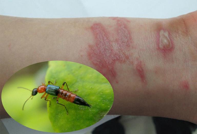viêm da tiếp xúc do kiến ba khoang