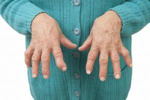 Biến chứng viêm khớp dạng thấp và cách phòng ngừa