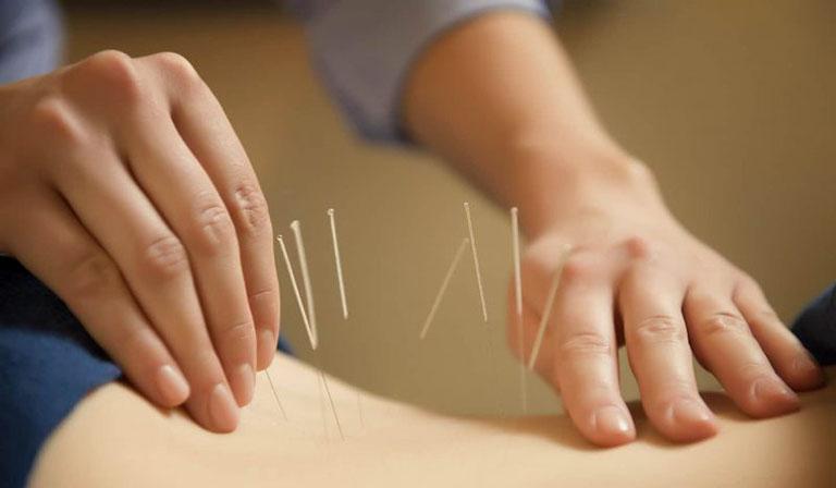 Châm cứu bấm huyệt là liệu pháp chữa bệnh đem đến hiệu quả cao, an toàn